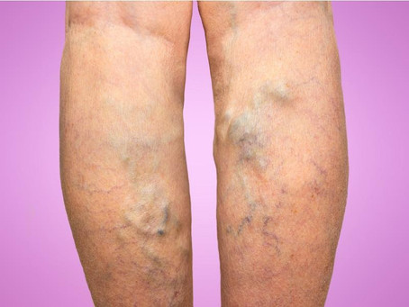 5 Varicose Veins Misconceptions and Myths