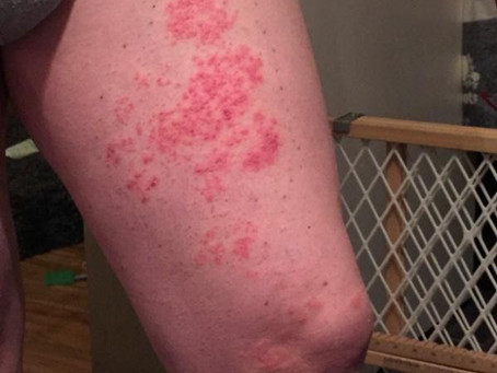 Identifying and Treating Shingles on Your Leg and Groin