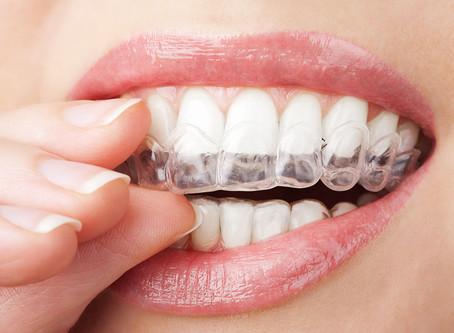 Options for Straightening Teeth