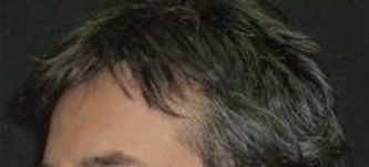 After picture of hair transplant (FUE)