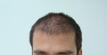 Hair loss before hair transplant (FUE)