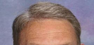 After picture of hair transplant (FUT)