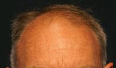 Hair loss before hair transplant (FUT)