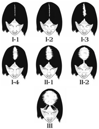 Women hair loss scales