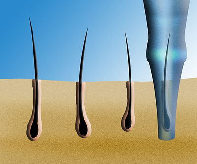 Hair loss solutions: FUE-punch-size-.jpg