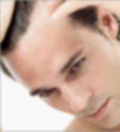 Men hair loss problems