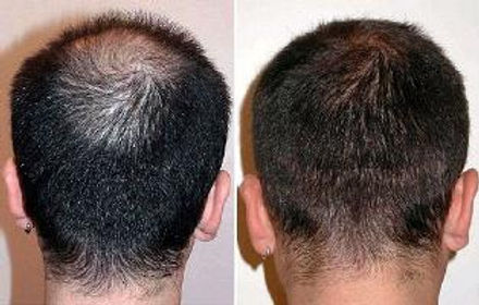 Before and after picture of hair transplant( FUE)