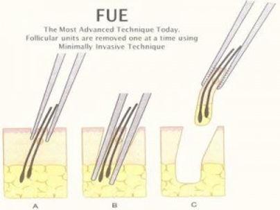 Hair loss solutions-FUE .jpg