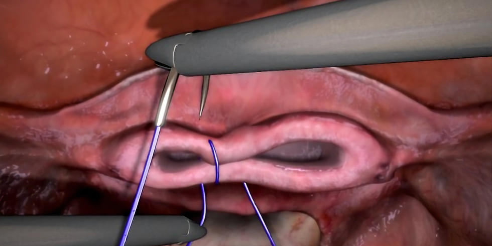 Suturing of the vaginal cuff