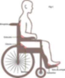 ulcera-press%C3%A3o-cadeirante_edited.jp