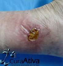 Hidrogel em feridas