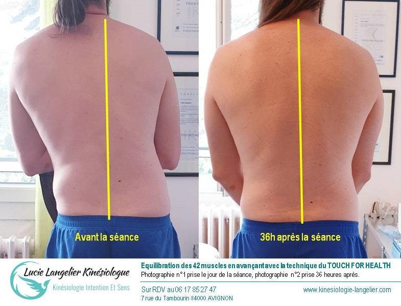 Equilibration de la posture / douleurs