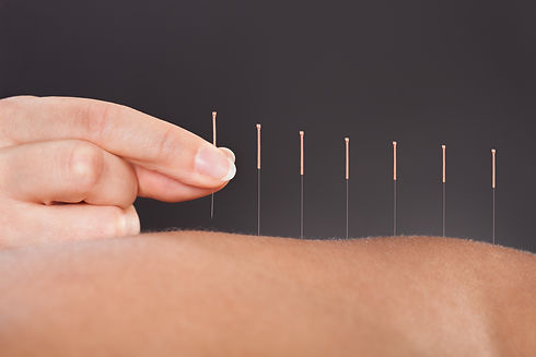 Close-up Of A Person Getting An Acupunct