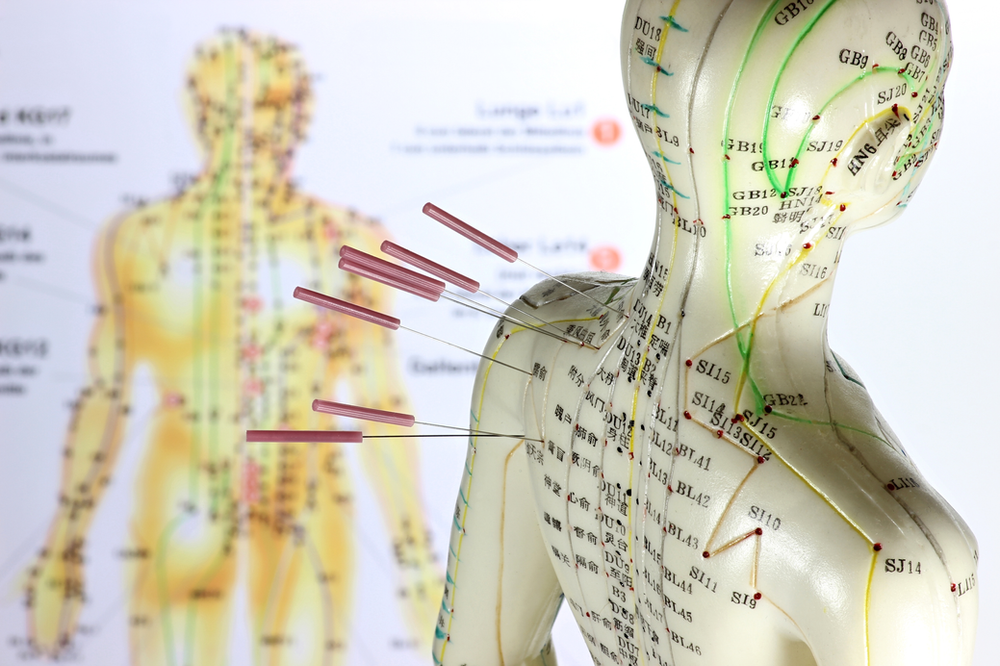 Differences between Acupuncture and Community Style ...