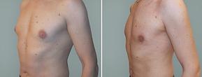 Schönheitschirurgie,  Schönheits OP, Brustvergrösserung, Brustverkleinerung, Rekonstruktions OP Brust, Haut, plastische Chirurgie,  Silikon Brustvergrösserung, Brustimplantate, anatomische Brustprothese,  Implantate, Silikonimplantate, Gynekomastie, gynécomastie, Kostengünstige Brustvergrößerung, Brustverkleinerung, Fettabsaugung,  die plastisch-chirurgischen Preise Premium Lounge Schweiz sehr attraktiv, kostengünstigste, CSS, Sanitas, Helsana, Swica, KPT,  Concordia, Visana, Intras KVG, Groupe Mutuel, Atupri, Vivao, Agrisano, mellkorrekció férfiaknak, zsírleszívás, günekomasztia, alakformálás, mellkorrekciós műtét