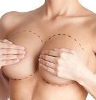 Schönheitschirurgie,  Schönheits OP, Zahnärzte, Hotelangebote,  Brustvergrösserung, Brustverkleinerung, Rekonstruktions OP  an Bauch, Brust, Haut, Po, allgemeine, plastische Chirurgie,  Silikon Brustvergrösserung, Brustimplantate, anatomische Brustprothese,  Implantate, Silikonimplantate, Augenlid, Face lifting, Gesichstsstraffung,  Vaginalplastik, Intim-Chirurgie, Schamlippen, Schamhügel-Verkleinerung,  Vaginalstraffung, Gynekomastie, Po-Verkleinerung, Po-Formung, Po-Lifting,  lifting du visage, vaginoplastie, gynécomastie, labia, Mont de Vénus, Venenchirurgie, Nasenchirurgie, Krampfadern-Op