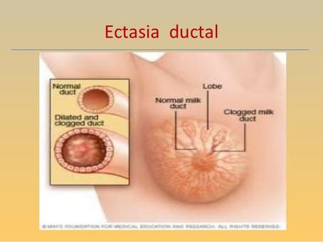 Ectasia retroareolar mamaria
