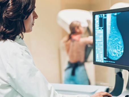 Las adenopatías ligadas a la vacuna COVID-19 podrían imitar las malignidades mamarias