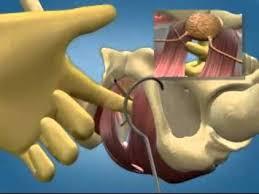 Cirugía contra los escapes de orina