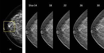 Eficacia de la inteligencia artificial en el diagnóstico del cáncer de mama
