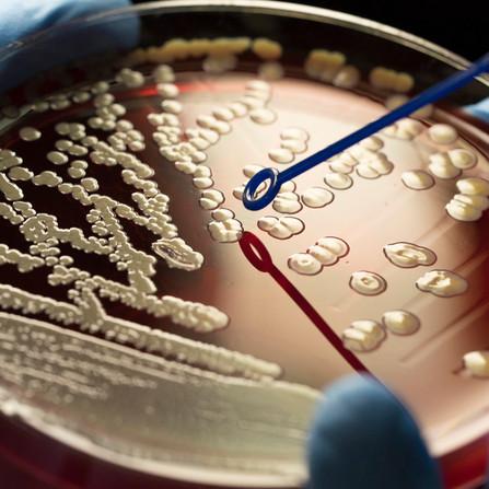 Antibiotico-resistenza: la fine di un'epoca d'oro?