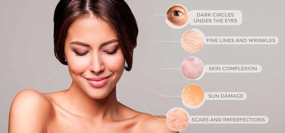 vampire-facial-treatments.jpg