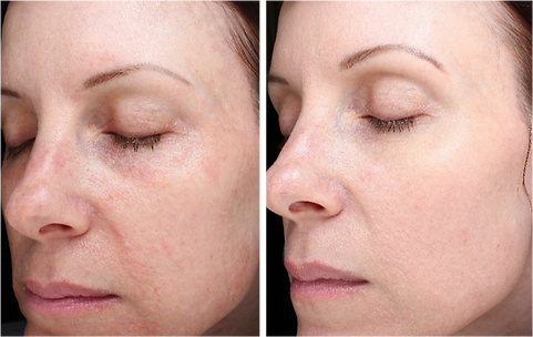 SkinPen-Before-and-After-8.png