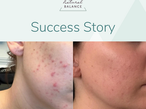 Case Study: Rebecca, IBS and Acne