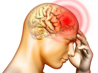 Acupuncture for tension-type headache