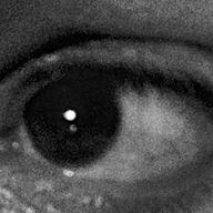 sven eye.jpg