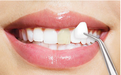 The Dangers of DIY whitening