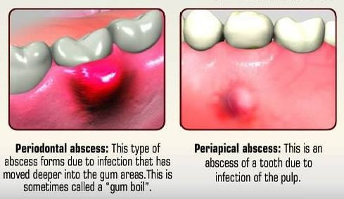 What is a Dental Abscess?