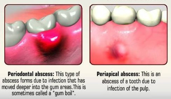 What Is A Dental Abscess