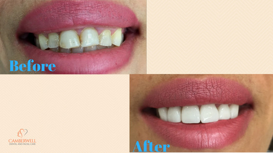 Are you interested in Veneers?