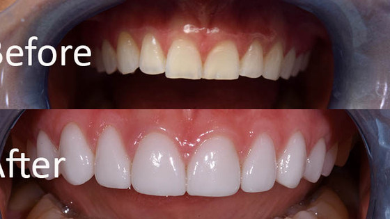 What are Veneers?