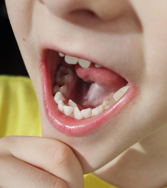 Adult tooth growing in behind a baby tooth?