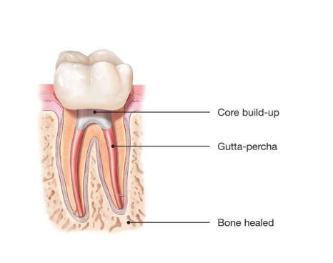 Importance of dental crown after root canal treatment.