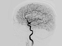 cerebral-angiography_thumb.jpg