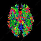 C0068342-Brain_tumour,_DTI_scan.jpg