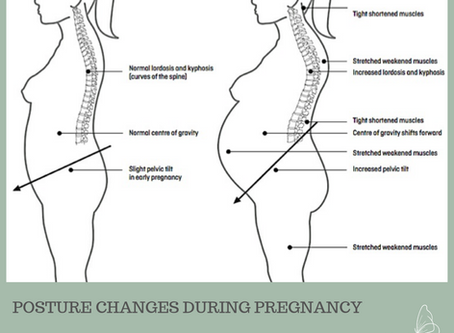 Posture Changes in Pregnancy - I've got your back!