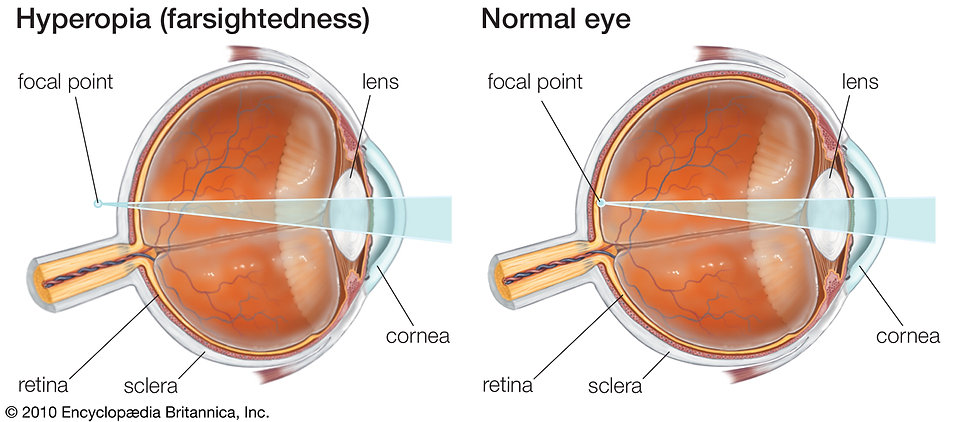 farsightedness-glasses-Hyperopia-lenses-