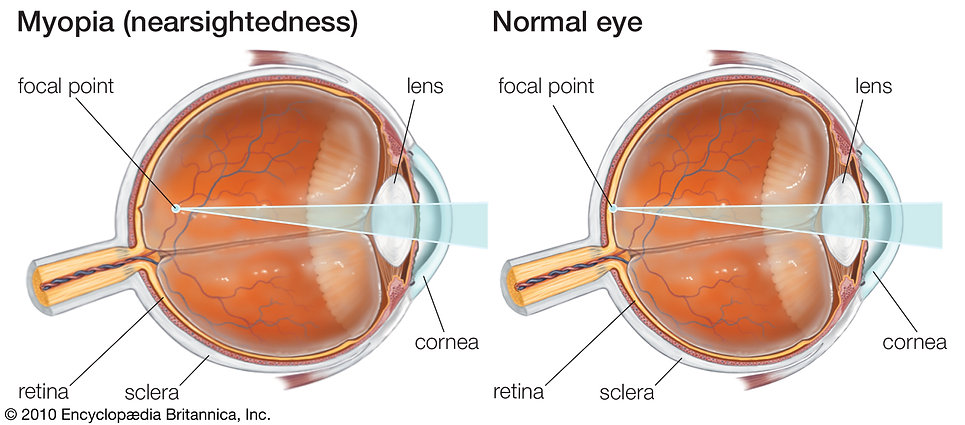 nearsightedness-glasses-Myopia-lenses-fo
