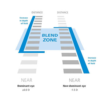 zeiss_presbyond_laser-blended-vision.ts-