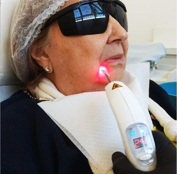 Laserterapia Local