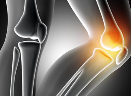 Osteoartrite tem cura - O que é ? | Qual tratamento | Preço