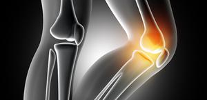 Solução para Osteoartrite (OA) do joelho em pacientes que falharam em responder adequadamente a terapia conservadora