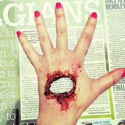 Hole in the hand
