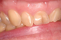 Picture of a worn smile with teeth cracked before porcelain dental veneers