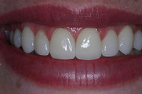 Picture of a smile after porcelain veneers