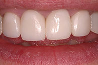 Picture of a smile with all porcelain crowns to replace older grey crowns